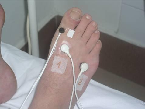 elektrode na nozi pacijenta